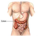 Valutazione e gestione medico/chirurgica della malattia diverticolare del colon