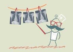 Aggiornamenti di pneumologia legale del lavoro