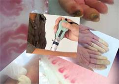 Le complicanze della sclerosi sistemica (sclerodermia): ulcere digitali e ipertensione polmonare